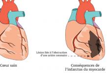 coeur présentant les symptomes de l'insuffisance artérielle